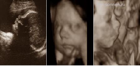 30 неделя беременности исследования