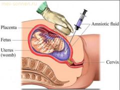 Как определяется синдром Дауна во время беременности?