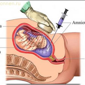 Синдром дауна можно ли определить во время беременности