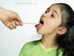 Какие симптомы хронического тонзиллита у ребенка?
