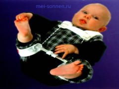 Врожденная дисплазия тазобедренного сустава у ребенка