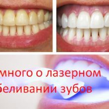 Немного о лазерном отбеливании зубов