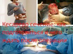 Кесарево сечение: как подготовиться и чего ждать после операции