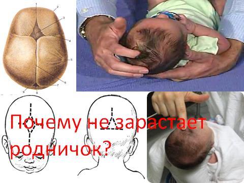 Где находиться родничок у новорожденного фото