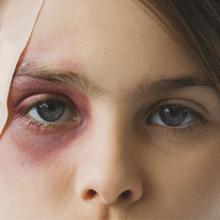 Как убрать гематому под глазом?
