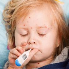 Корь: причины, пути заражения, симптомы, лечение и профилактика болезни у детей