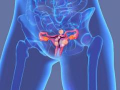 Субсерозная миома матки: симптомы и лечение