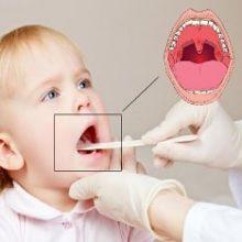 Ангина у детей: как и чем лечить детское горлышко?