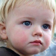 Диатез на щеках у ребенка – лечение
