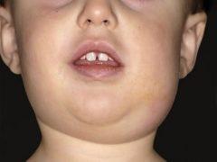 Паротит у детей: почему так опасна свинка?