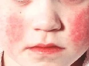 Скарлатина: как лечить ребенка и избежать осложнений?