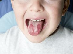 Стоматит у детей: причины, симптомы и лечение