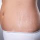 Как убрать живот и растяжки после родов быстро?