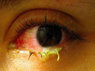 Симптомы и лечение хламидийного конъюнктивита