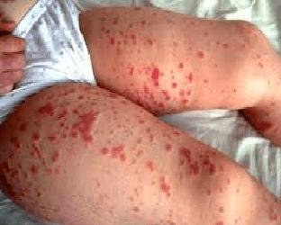 Лечение Геморрагического васкулита у детей