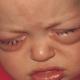 Симптомы и лечение конъюнктивита у детей