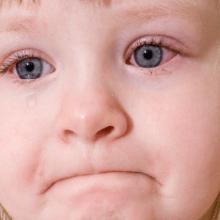 Почему у ребенка могут быть красные глаза?