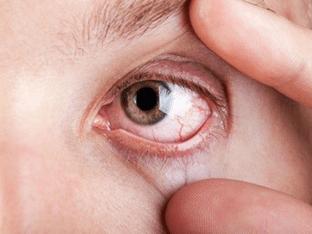 Воспалился глаз у ребенка - как и чем лечить?