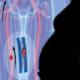 Норма анализа Д-димер. Зачем он нужен беременным