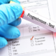 Уровень прогестерона при беременности – норма и отклонения